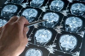 Biomarker Outperforms Gold Standard to Detect Brain Shunt Infections