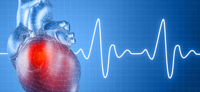 New Study Finds Potential Breakthrough in Determining Who's at Risk for Heart Attacks