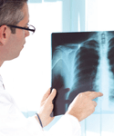 A Look at Recidivism in COPD Management