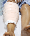 Guideline Recommendations for Prosthetic Joint Infections