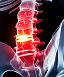 Acute Spinal Cord Injury: New Practice Guidelines