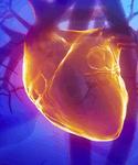 Improving Pulmonary Hypertension Care