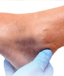 Reducing Risks of Foot Complications in Diabetes