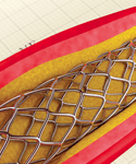 Going Straight to PCI for Patients With STEMI
