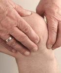 Gender Bias in Knee Osteoarthritis