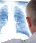 Reducing Postoperative Pulmonary Complications