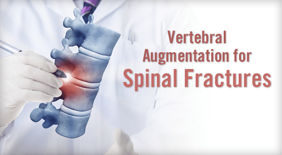 Vertebral Augmentation for Spinal Fractures