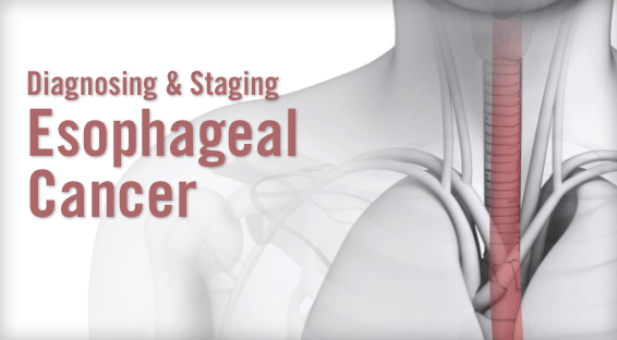 Diagnosing & Staging Esophageal Cancer