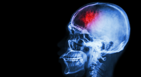 New Evidence-Based Guidelines: 4 Signs of Concussion