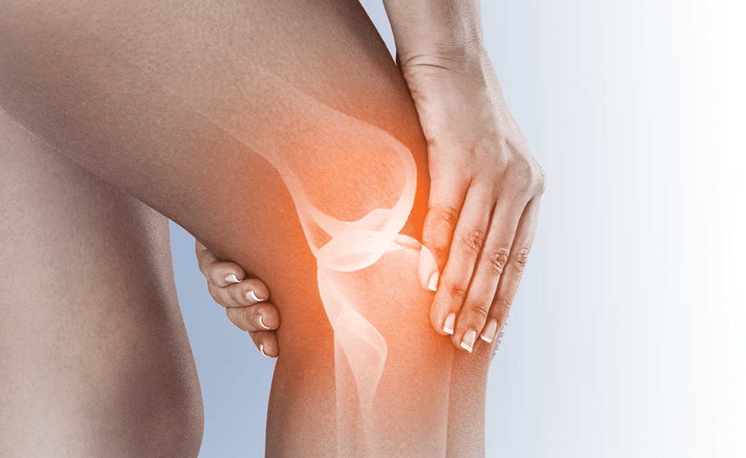 Symptomatic Knee OA on the Rise