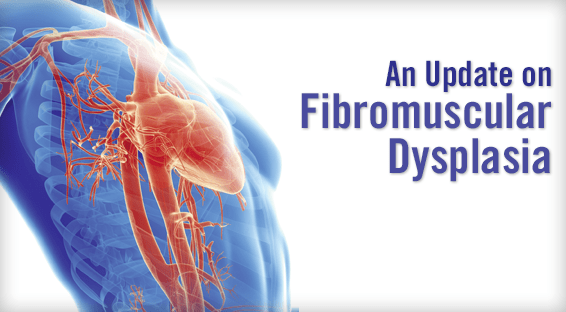 An Update on Fibromuscular Dysplasia