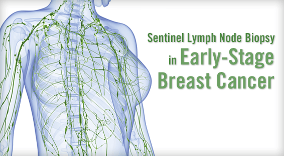 Sentinel Lymph Node Biopsy in Early-Stage Breast Cancer