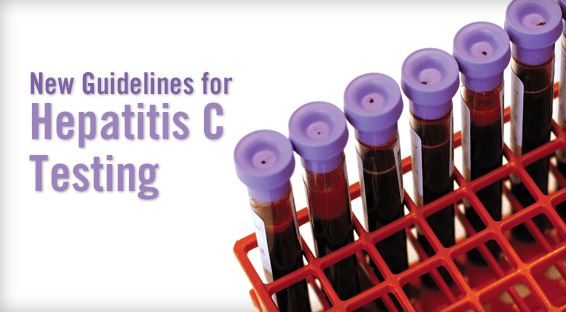New Guidelines for Hepatitis C Testing