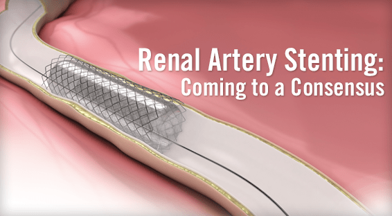Renal Artery Stenting: Coming to a Consensus
