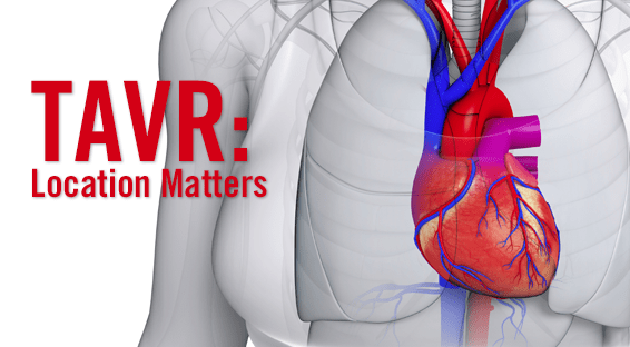 Comparing Where TAVR is Performed