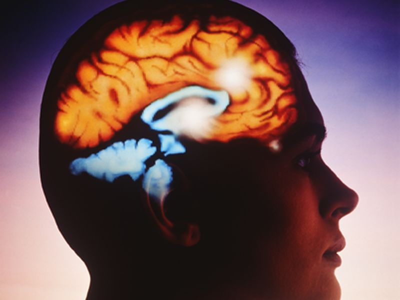 Models Predict Intracerebral Hemorrhage Growth