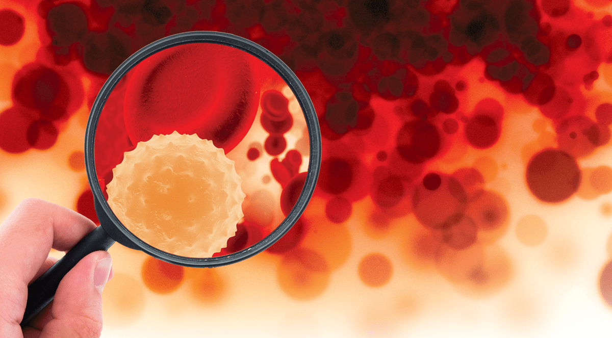 Examining AIDS-Defining Opportunistic Infections