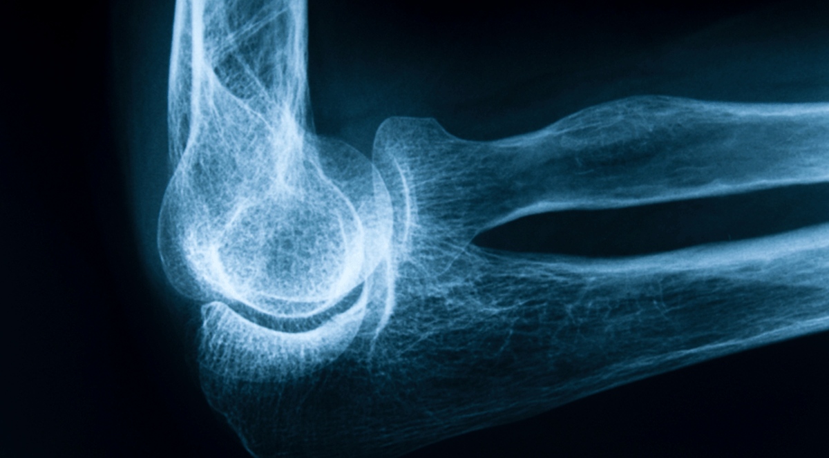 Osteoporosis-Related Bone Fractures Linked to Air Pollution