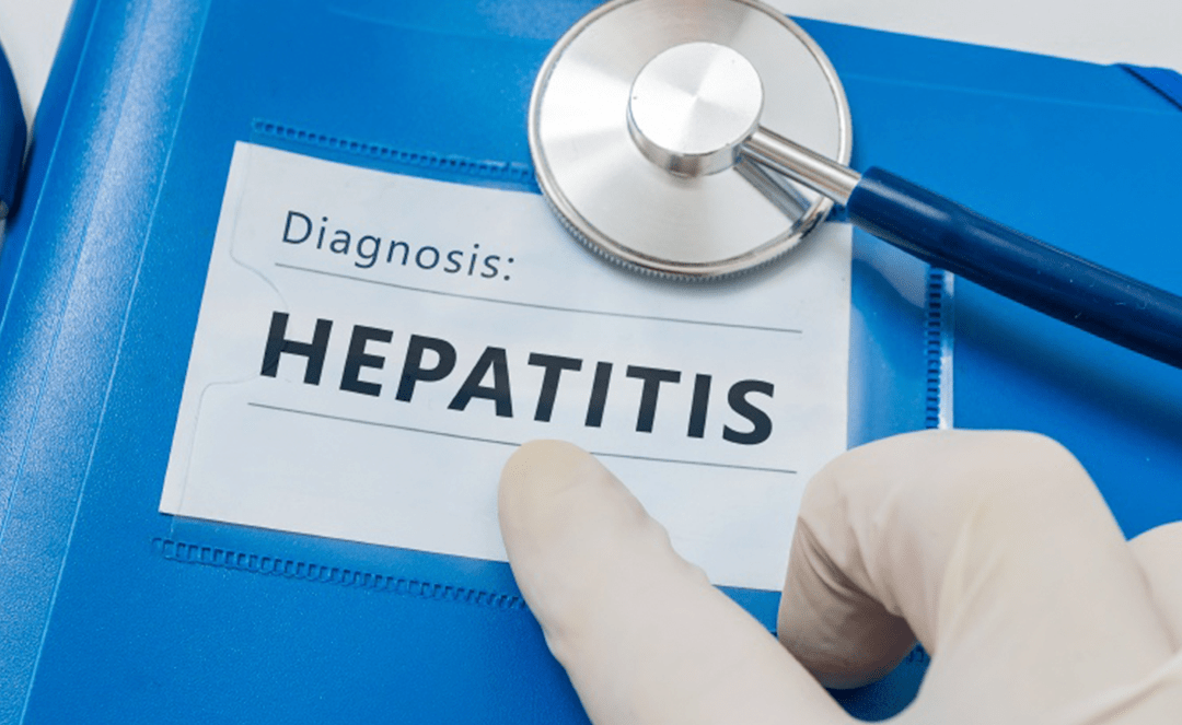The order of hepatitis B testing and hepatitis C treatment