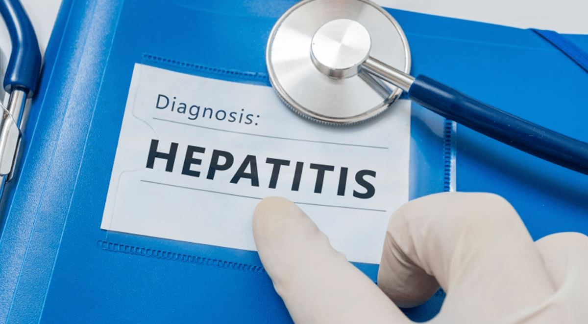 Research shows doctors are failing to diagnose more than 50% of patients with hepatitis C virus
