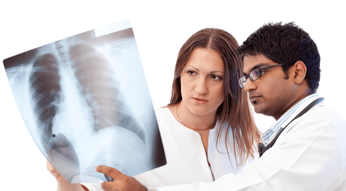 Managing High-Risk Lung Cancer