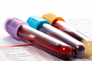 bloodwork-vial-test