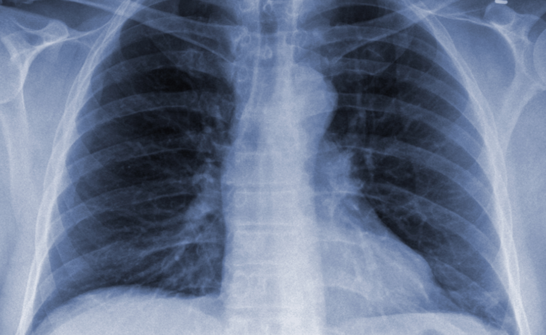 Community-Acquired Pneumonia Can Spread Year-Round