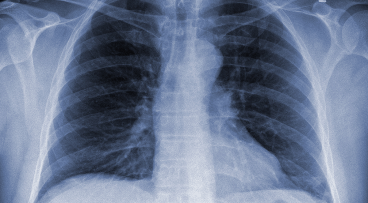 People with Cystic Fibrosis Might Live Longer Because of Genetic Mutations