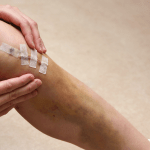 Guidance-Managing-ACL-Injuries_Feature