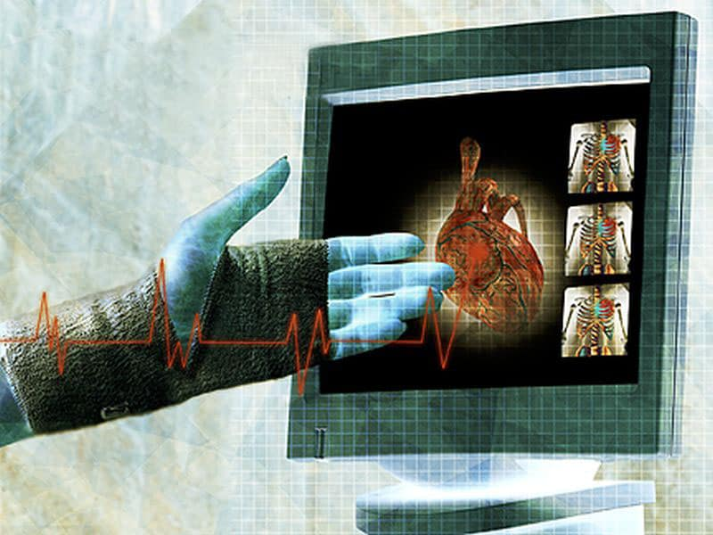 Women With Non-Obstructive CAD May Suffer From Myocardial Scars