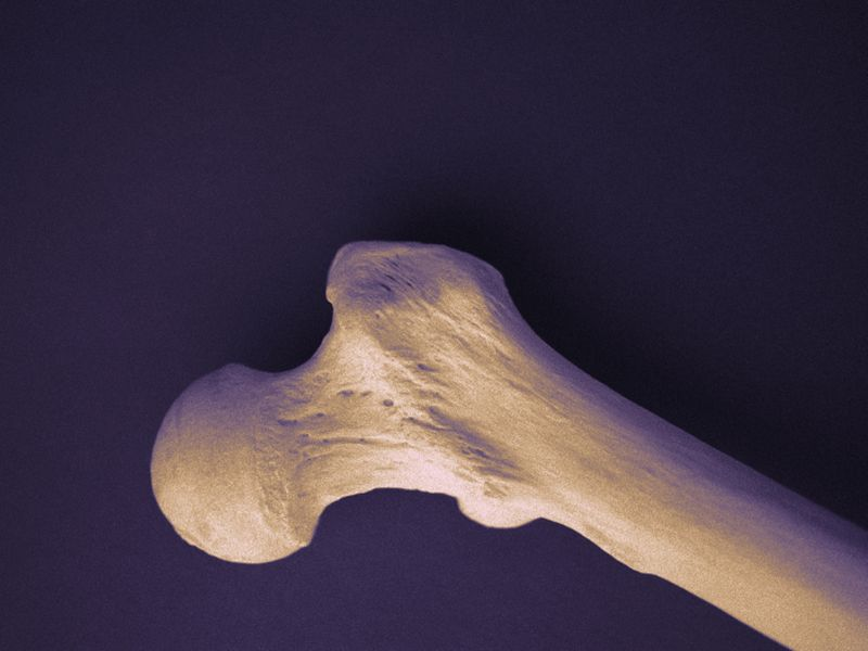 Zoledronate Lowers Fracture Risk in Women With Osteopenia