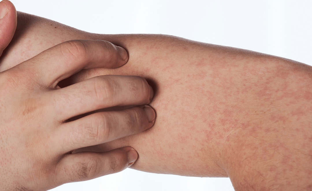 Many doctors still don't know facts about penicillin allergy