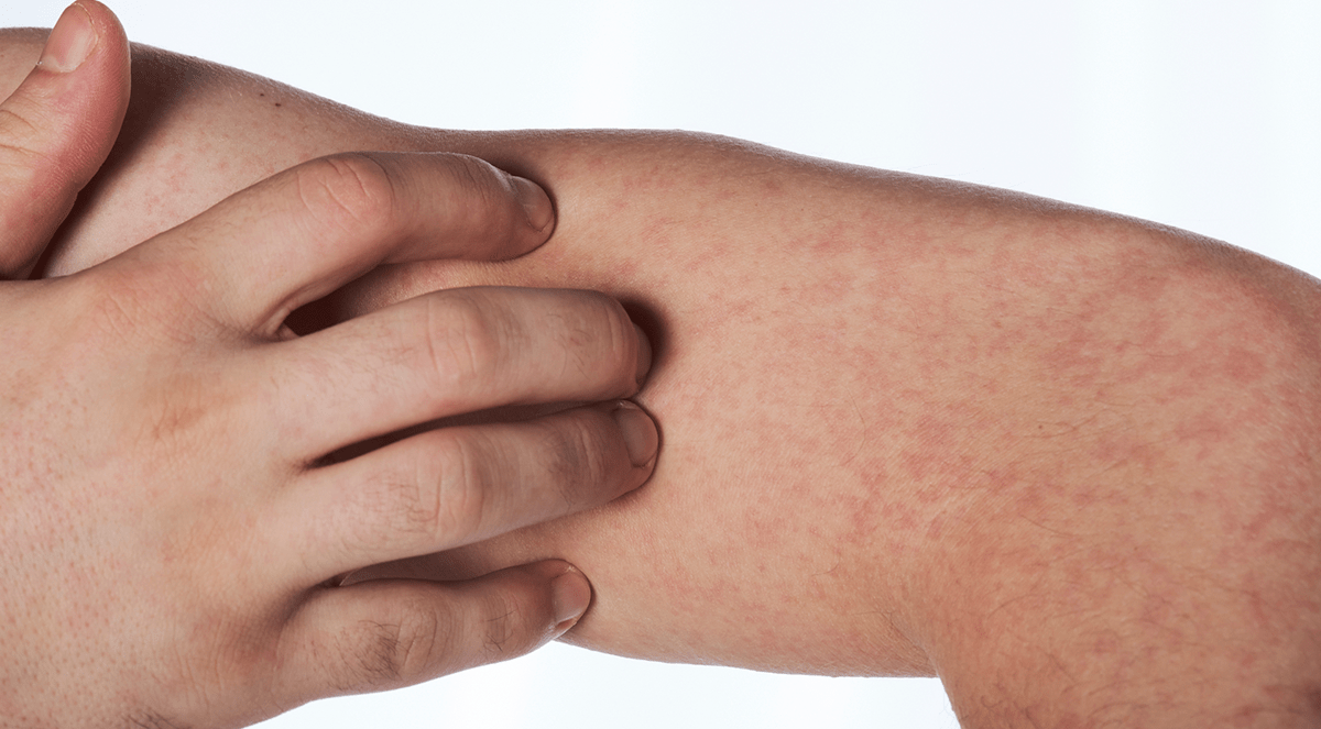 measles-allergy-allergies-rash-itch-scratch