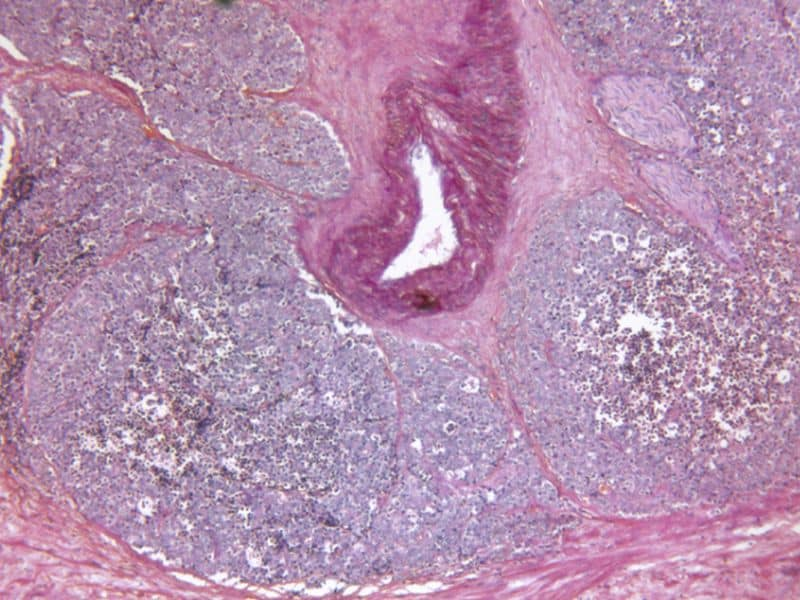 Single-Dose Brachytherapy Effective for Prostate Cancer