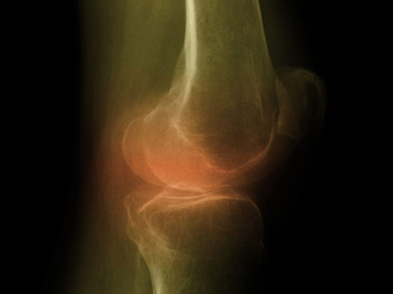 Barriers Identified in Current Knee Osteoarthritis Care