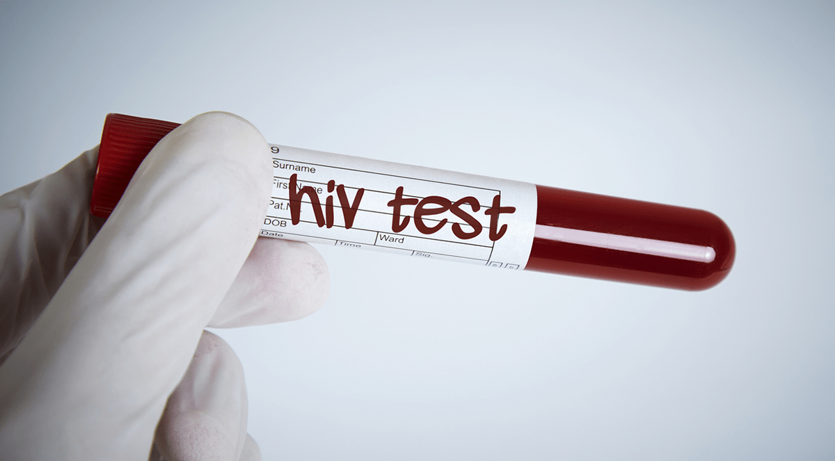 CDC Guidelines for HIV Prevention Regimen May Not Go Far Enough