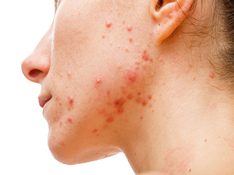 Acne Relapses Linked to Lower Quality of Life, Productivity