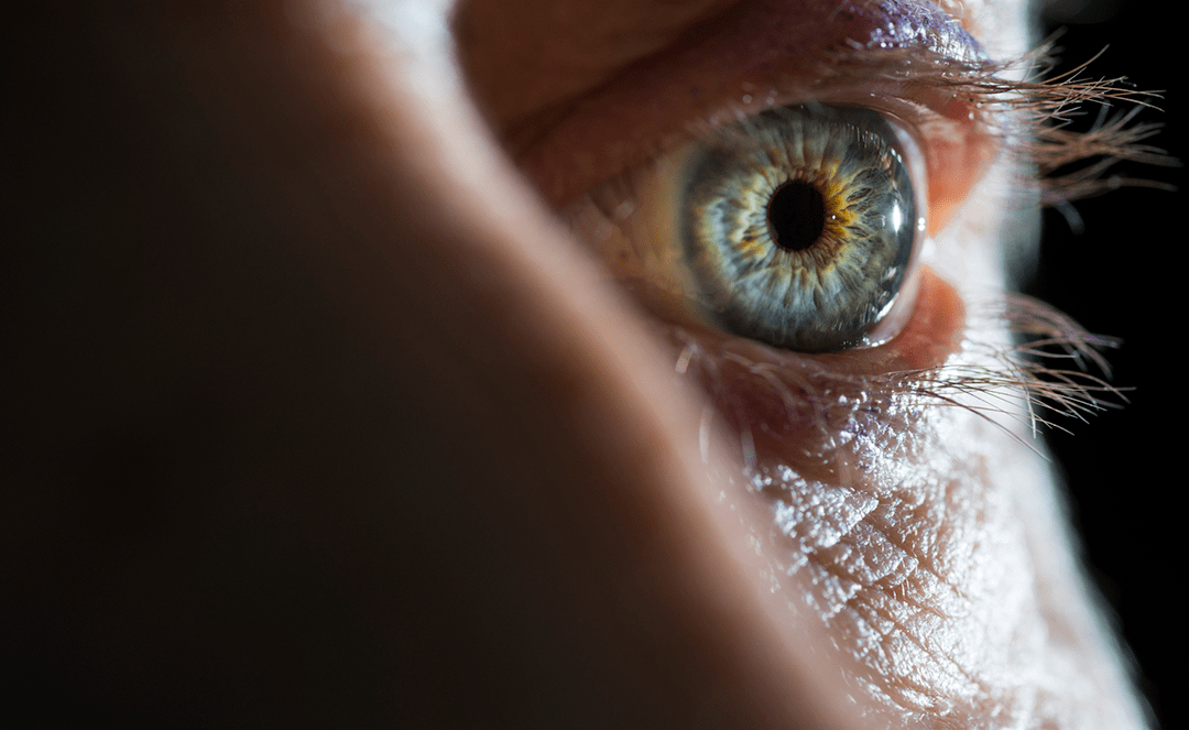 Why Using Antibiotic Eye Drops for Pinkeye is the Wrong Way to Go