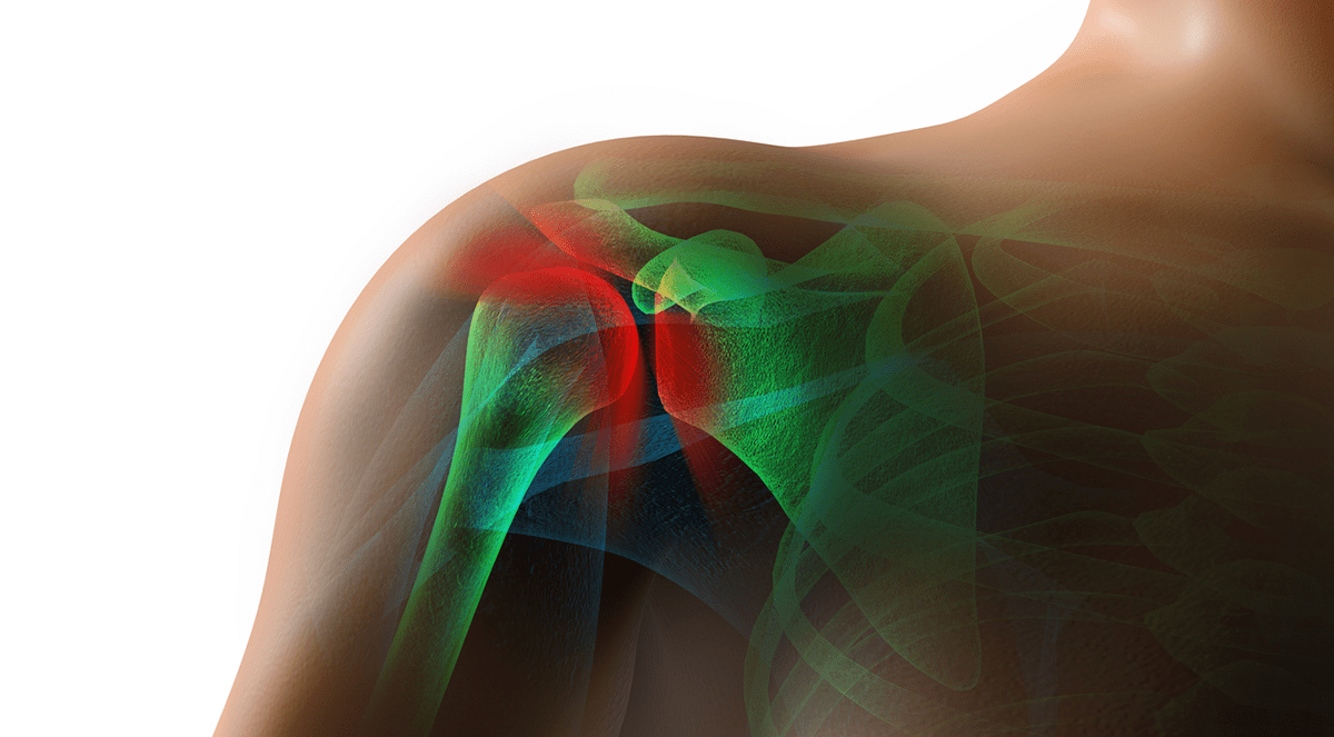 Shoulder pain linked to increased heart disease risk