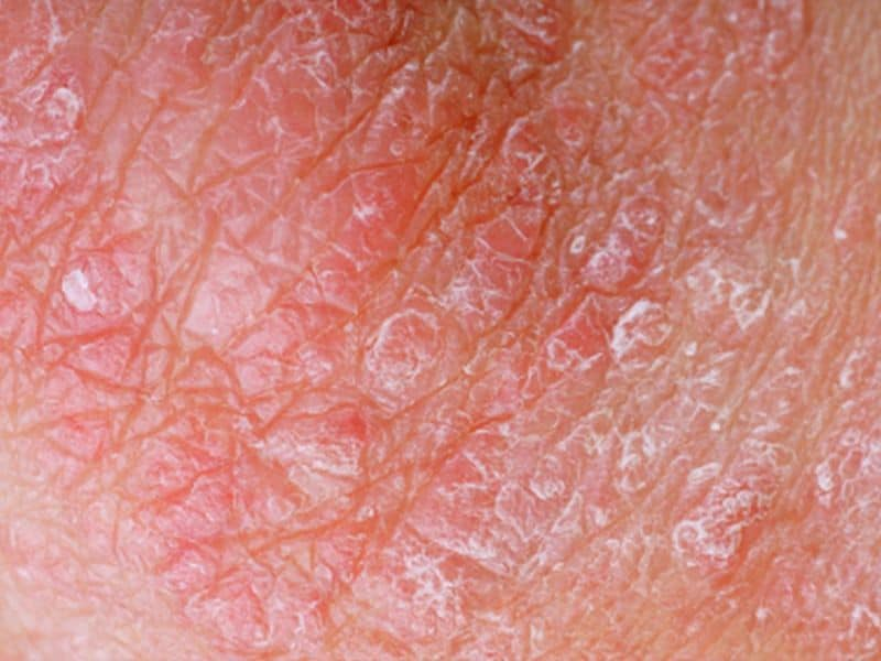 Drug Survival Rates Highest for Ustekinumab for Pediatric Psoriasis