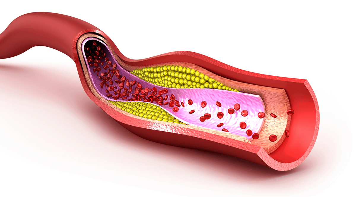 blood-vessel-plaque-cholesterol