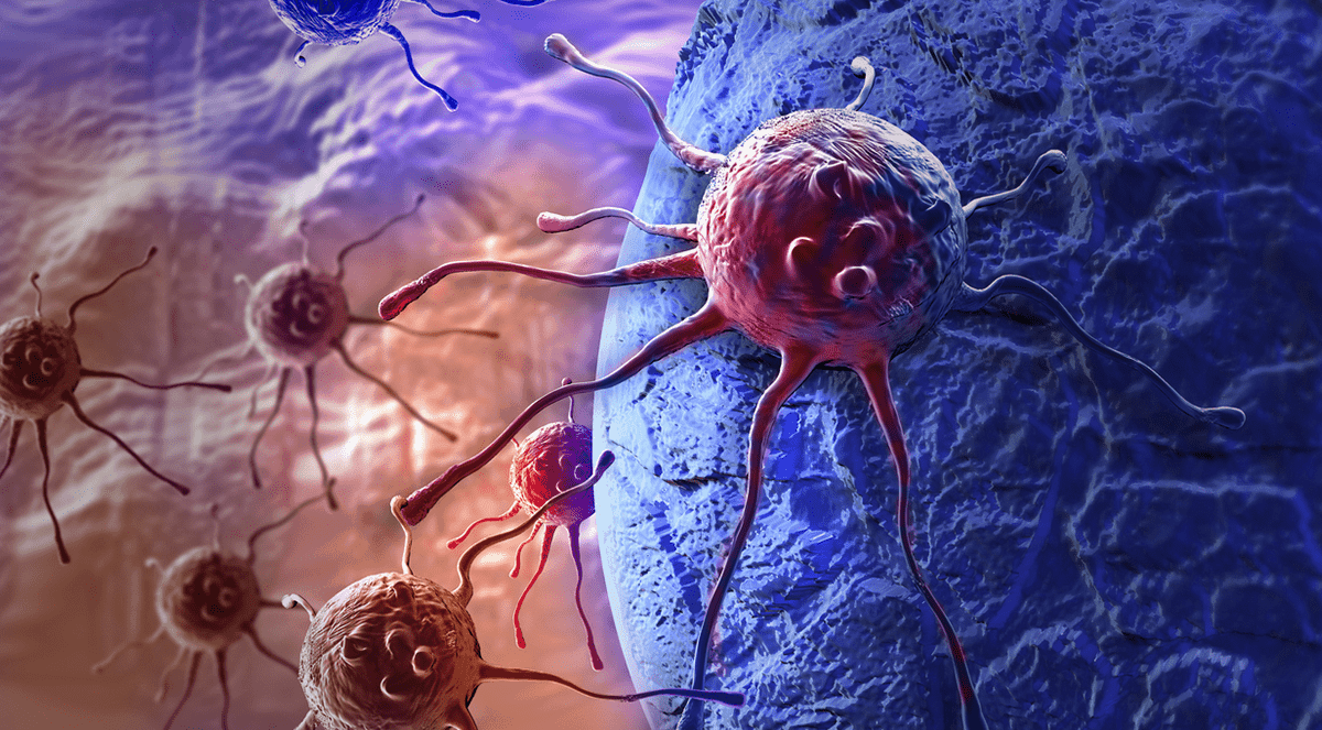 Drug Suppresses Spread of Breast Cancer Caused by Stem-Like Cells