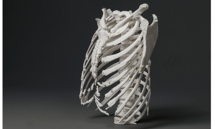 Implementing In-Hospital 3D Printing
