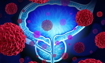 Common Genetic Fusion Event May Be Associated with Low-Risk Prostate Cancer