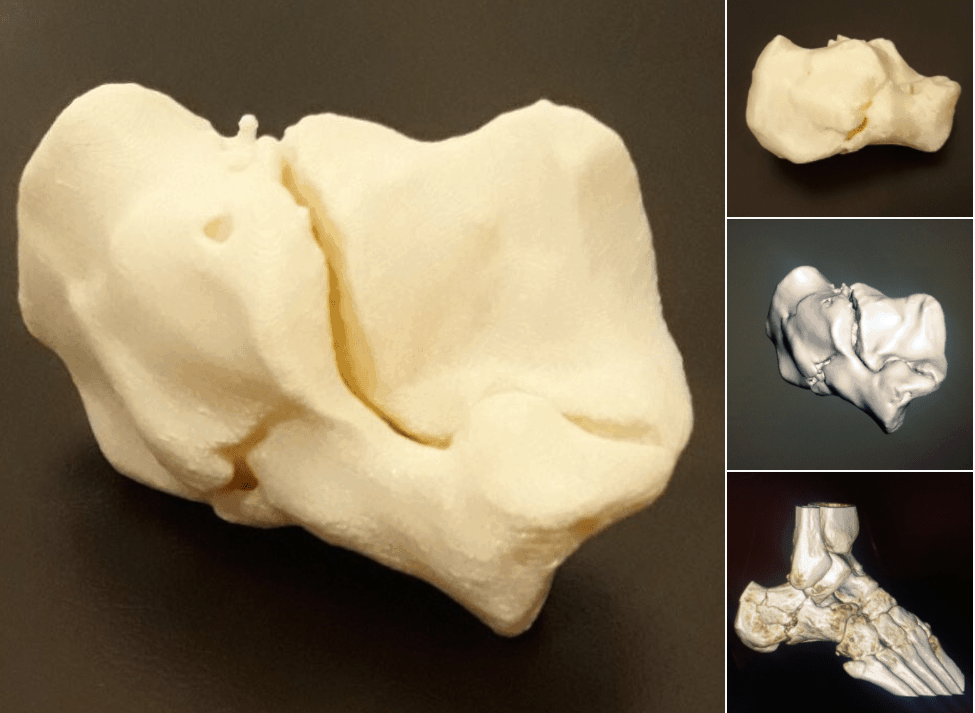 3D Printing Shows Talocalcaneal Joint Very Well!