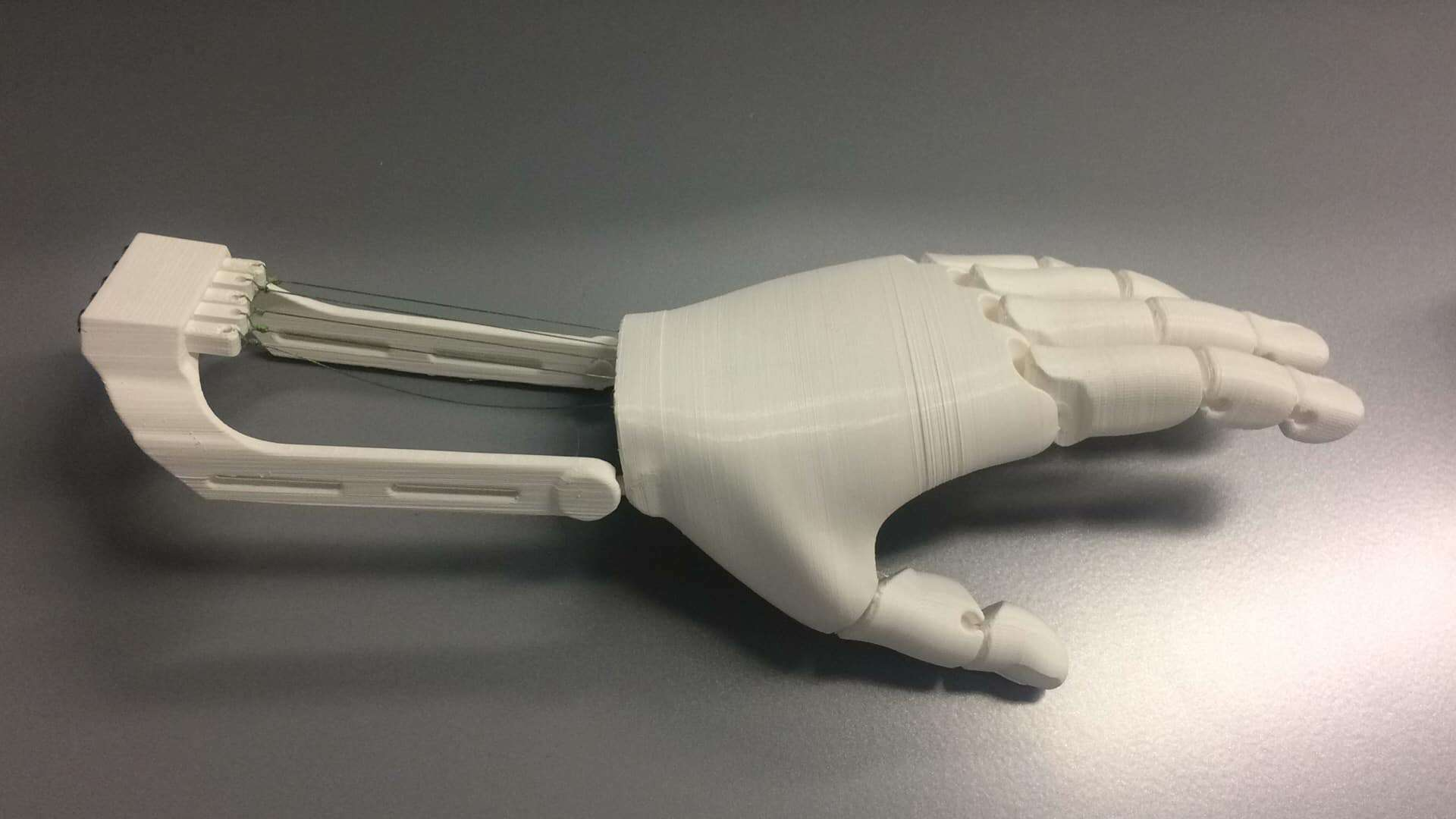 Bringing 3D-Printed Prosthetic Hands to Third-World Countries