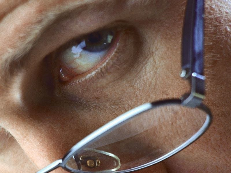 Cataract Surgery Less Likely With Small Social Support Network