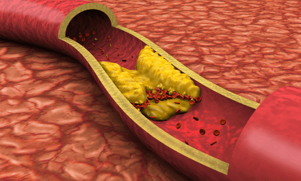 Atherosclerosis Events in SLE