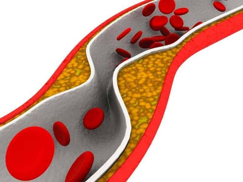 Coronary Artery Calcium Levels in Middle Age Tied to LV Function