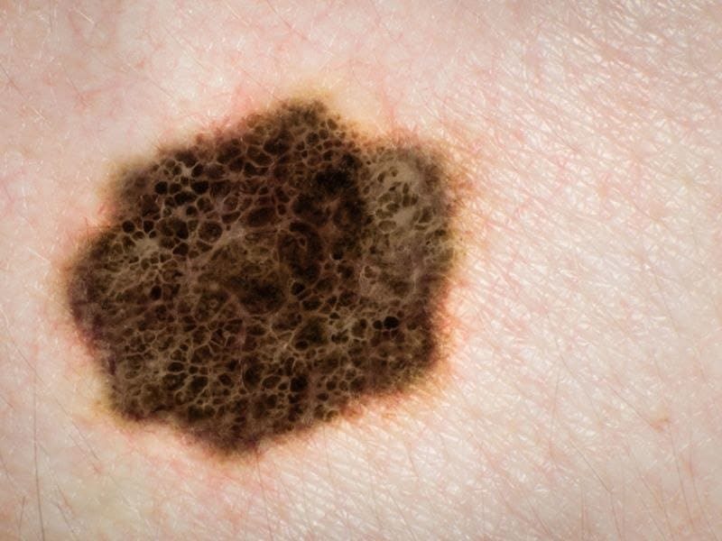 Stage IV Melanoma of Unknown Primary